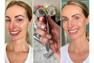Netstyles chefredaktör Charlotta Flinkenberg har testat vår Skin Roller