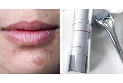 magazineaajien, kosmetologien ja lääkäreiden ylistämä ihonhoito