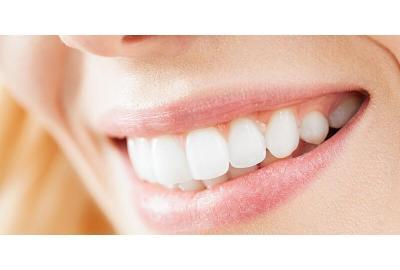 Forebygge gule og misfargede tenner