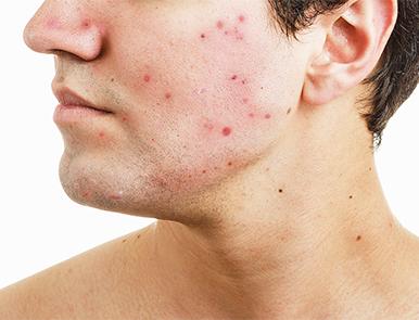hur får man bort acneärr